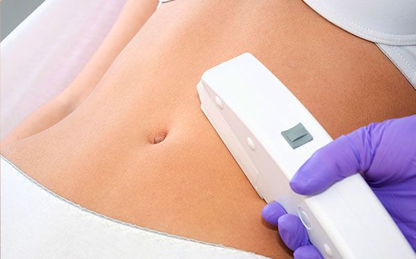 Medical Spa Washington DC Laser Treatment