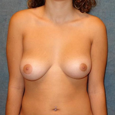Breast Asymmetry Washington DC before and after