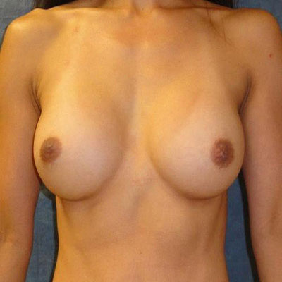 Fat Transfer Breast Augmentation Washington DC