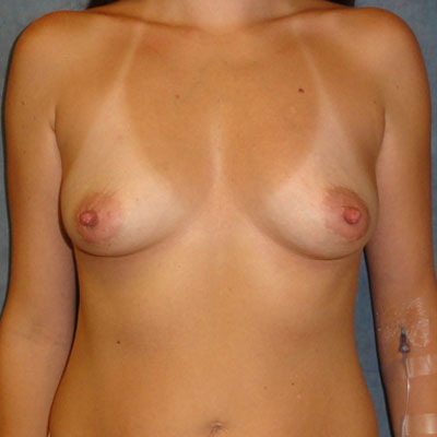 Fat Transfer Breast Augmentation before and after