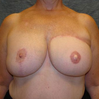 Have faced flap breast reconstruction apologise, but
