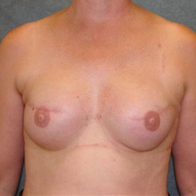Breast cancer reconstruction Washington DC