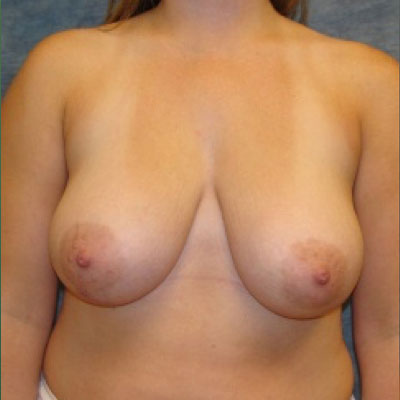 Breast Reduction Washington DC