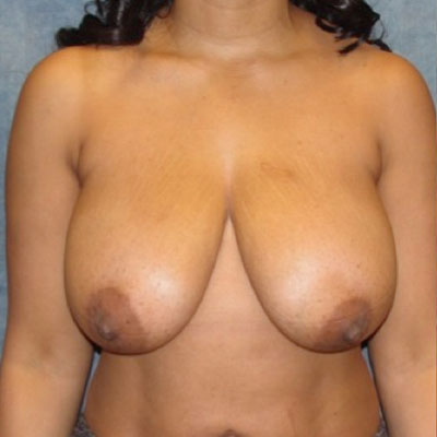 Breast Reduction Washington DC Before and After
