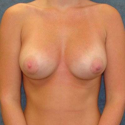 tuberous breast augmentation Washington DC