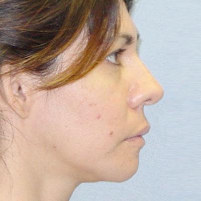 washington dc facial implants
